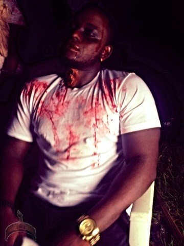 omoAKIN Photo: Music artist OmoAkin injured by animals at Lagos resort?