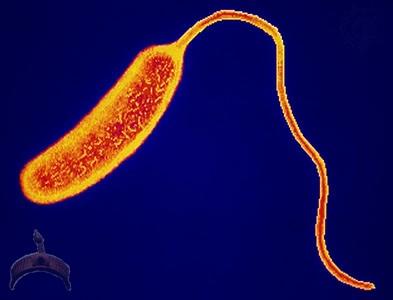 cholera-bacteria