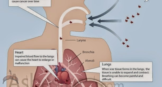 mesothelioma-law-firm-diagram-612x330