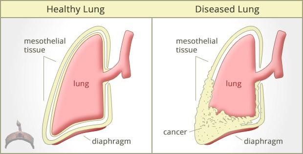 Mesothelioma Disease
