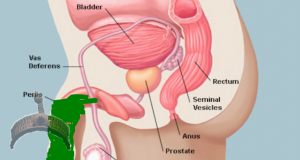 Prostate Gland and its effect on Men Must Read and apply, esp. the part on diet.