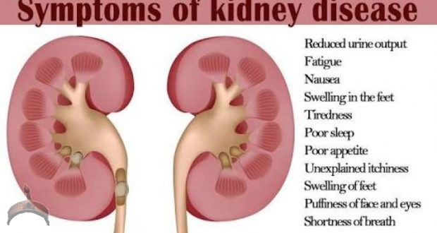 Clean Your Kidney Now, Avoid Dialysis